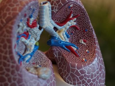 Common denominators in fibrotic lung disease